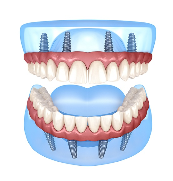 Animated dental implant supported dentures